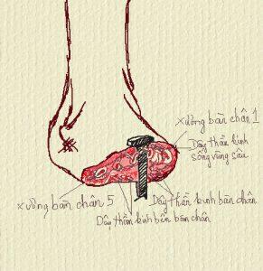 mặt cắt bàn chân bị đóng đinh